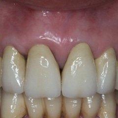 corona studio dentistico