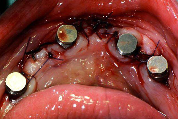 isopost biotech utilizzando la vecchia protesi