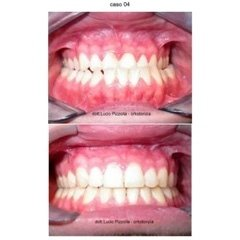 ortodonzia caserta