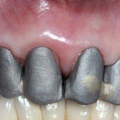 corona dentista