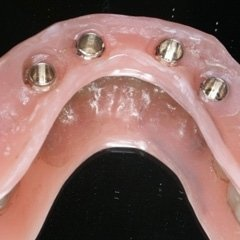 Protesi overdenture su impianti
