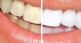 endodonzia, igiene, prevemzione