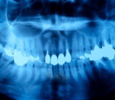 lastra denti
