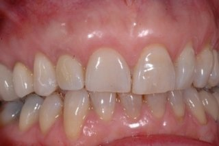 denti macchiati