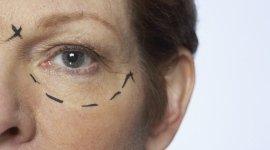 cheiloplastica, chirurgia plastica zigomi, dermoabrasione, fotoringiovanimento con luce pulsata, labioplastica