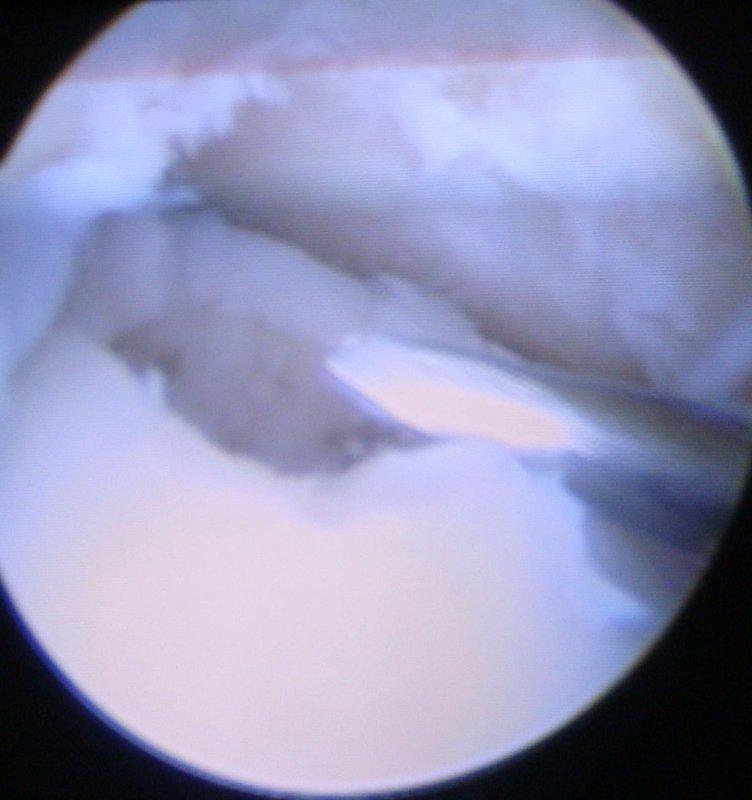 artoscopia della caviglia
