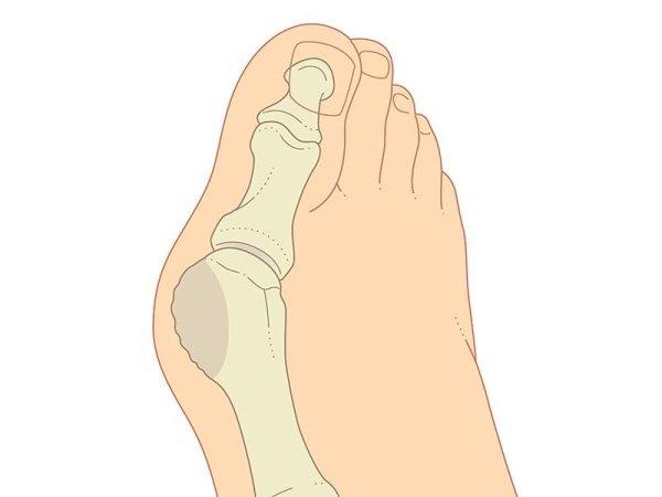 Correzione deformità del piede