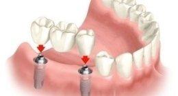 protesi dentarie, apparecchi dentali, denti finti