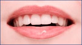 Prendersi cura della propria bocca