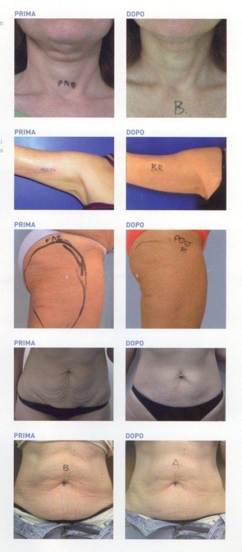 Trattamenti rimodellanti: prima e dopo il trattamento
