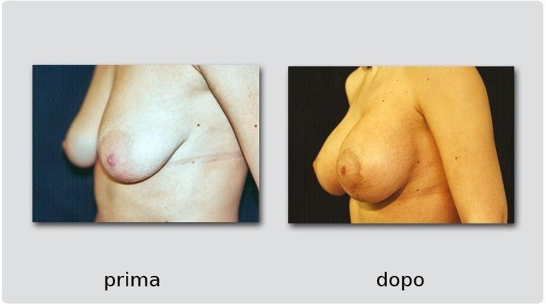 rimodellamento seno