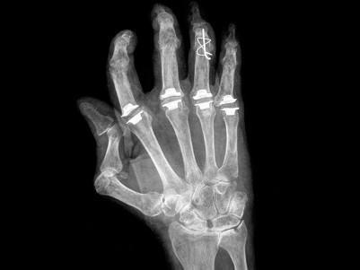 Artrosi reumatoide - Studio Dott. Espen