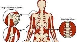 scheletro superiore
