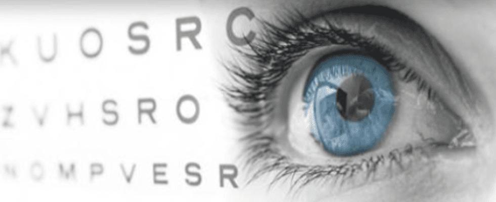medico oculista