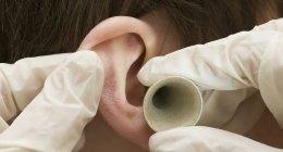 visita dell'udito