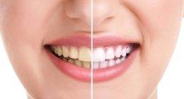 sbiancamento denti, sbiancamento dentale, estetica dentale