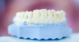 protesi denti mobili, studio odontoiatrico, riparazione protesi denti