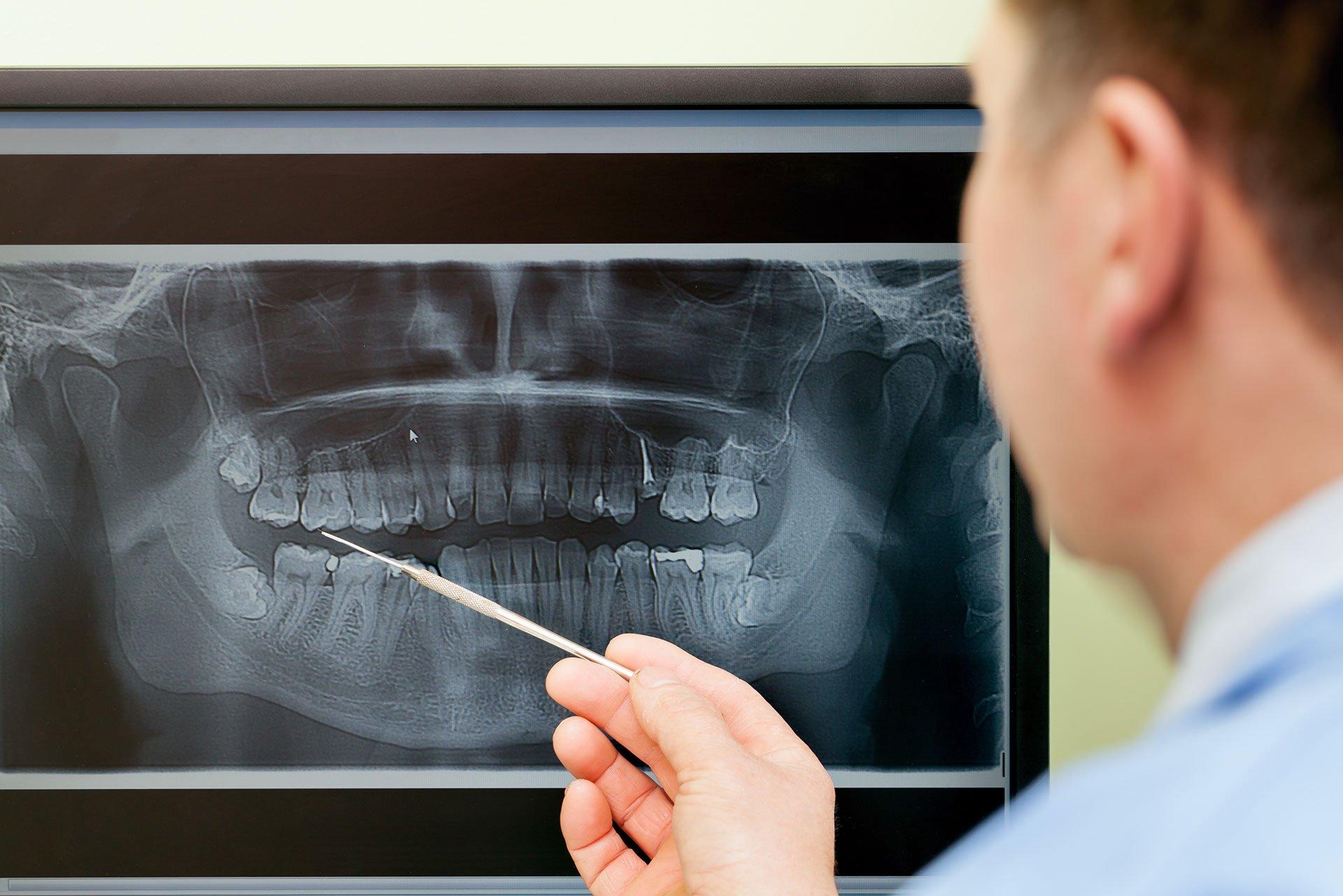 Dentist looking teeth on digital X-Ray computer monitor