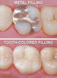 Metal vs Tooth Colored Fillings
