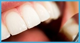 cura gengive denti