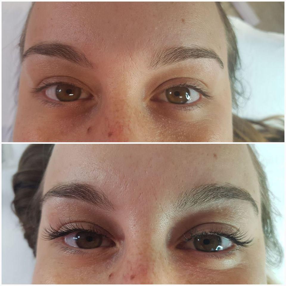 paziente prima e dopo trattamento viso
