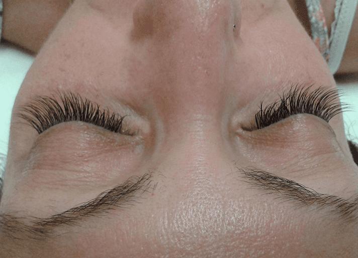 dettaglio sopracciglia dopo trattamento viso