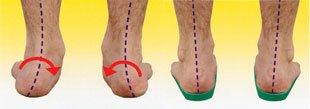 Feet-on-Orthotics