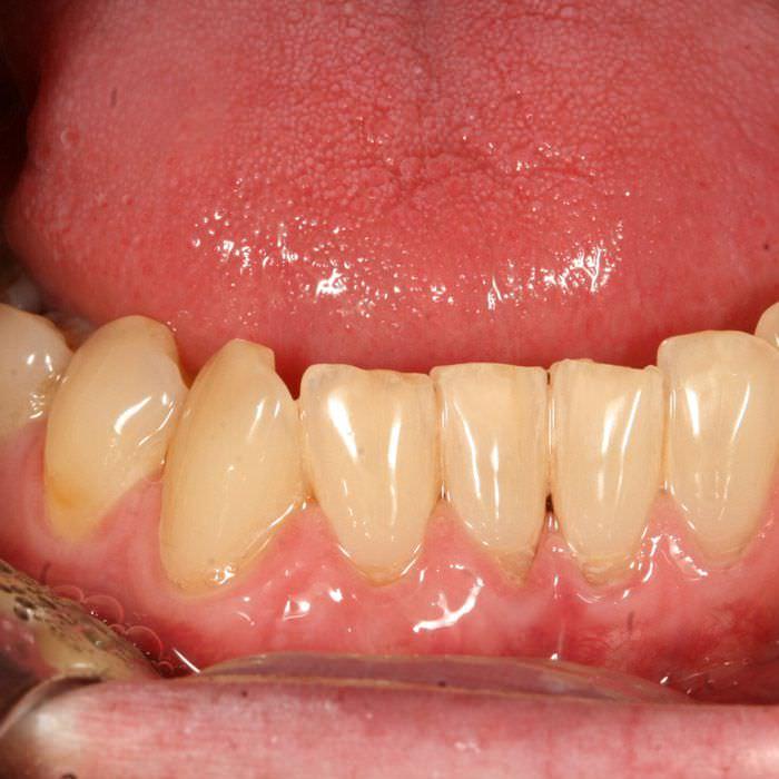 Nach Zahnfleischtransplantation
