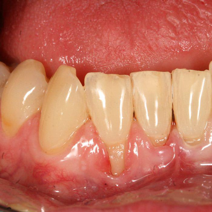 Vor Zahnfleischtransplantation