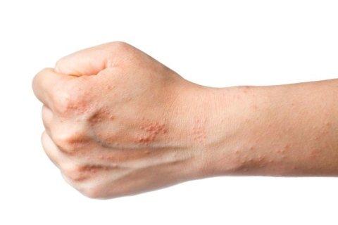 Trattamento dermatite