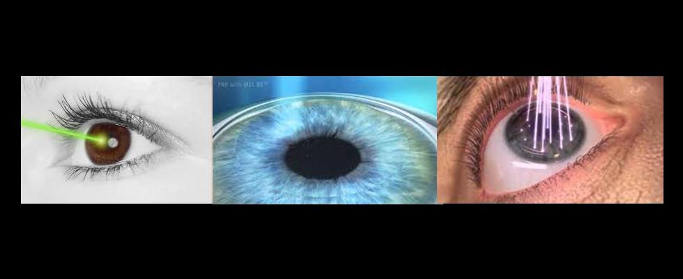 Oculista laser