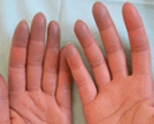diagnosi-fenomeno-di-raynaud