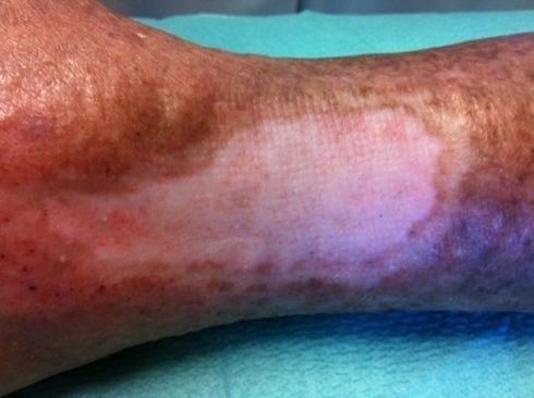 trattamento ulcere vascolari