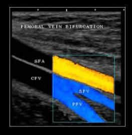 EcoDoppler vascolare femorale