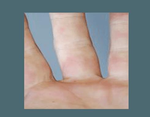 diagnosi e terapia Fenomeno di Raynaud