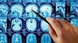neuro, clinica, ambulatorio
