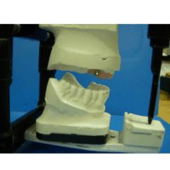 Protesi con barra su attacchi ceka