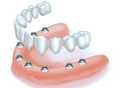 Multi-teeth and Full arch implants Saugus, MA