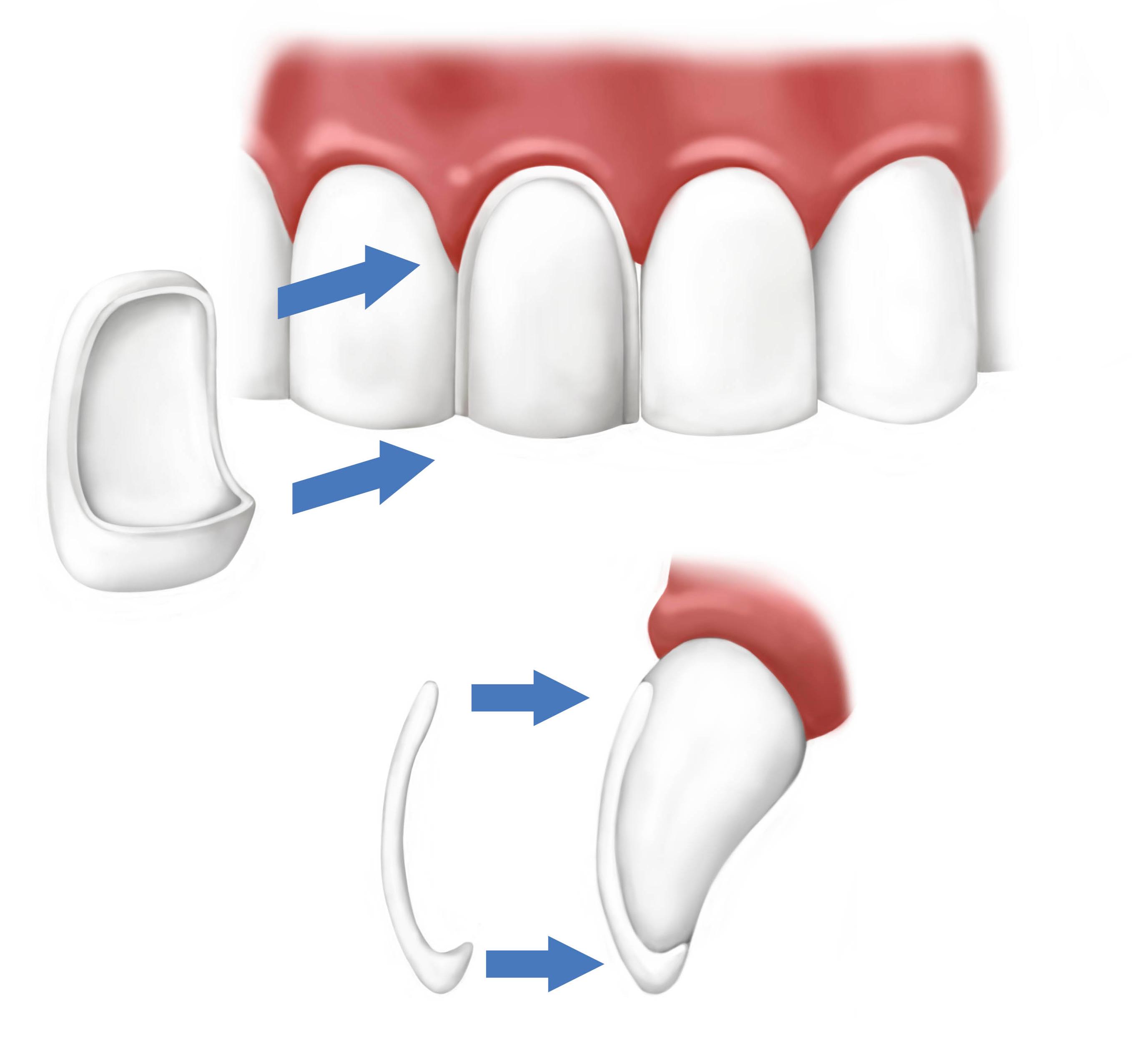 Dental Veneers, Saugus, MA