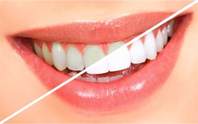 Teeth Whitening Zoom, Saugus, MA