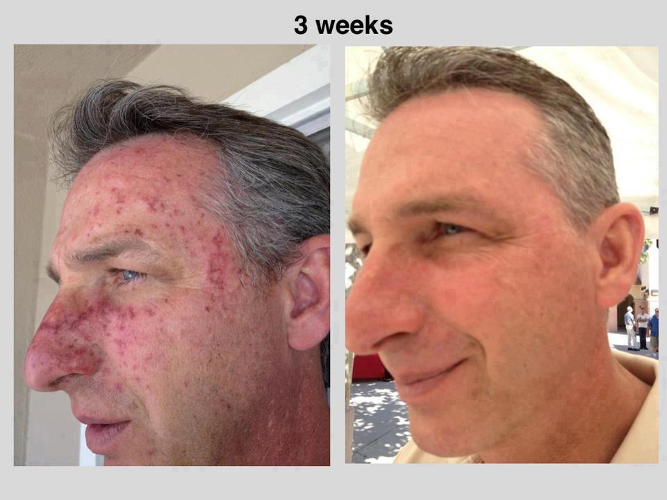 prima e dopo trattamento pelle uomo