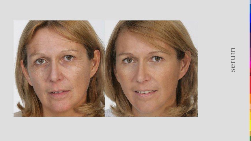 cura della pelle, prima e dopo