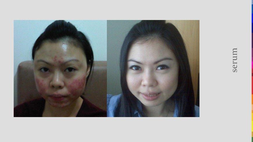 prima e dopo trattamento per guance