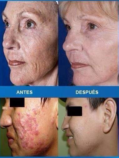 trattamento antirughe