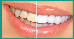 sbiancamento dentale rimini, sbiancamento dentale, igiene dentale, dott. luca battarra, studio medico battarra, studio dentistico rimini