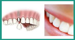 studio medico dottor battarra, implantologia dentale, igiene dentale, impianto dentale rimini, studio medico rimini