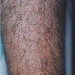 epilazione laser salerno