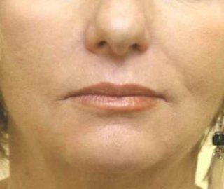 distensione della pelle confronto tra i due lati del viso