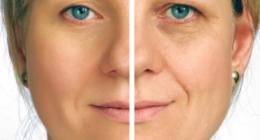lifting occhi, Chirurgia del volto, rinoplastica Genova