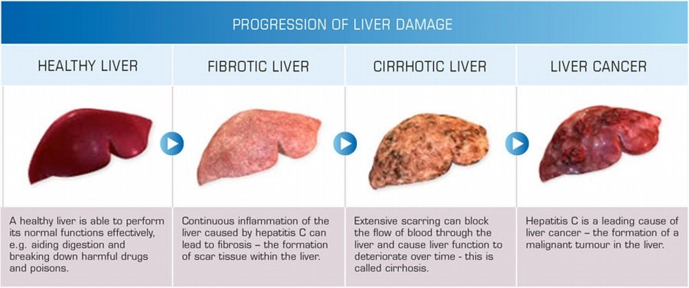 Can liver disease cause anal bleeding